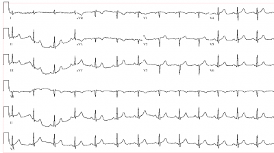 EKG_atypical_for_AMI