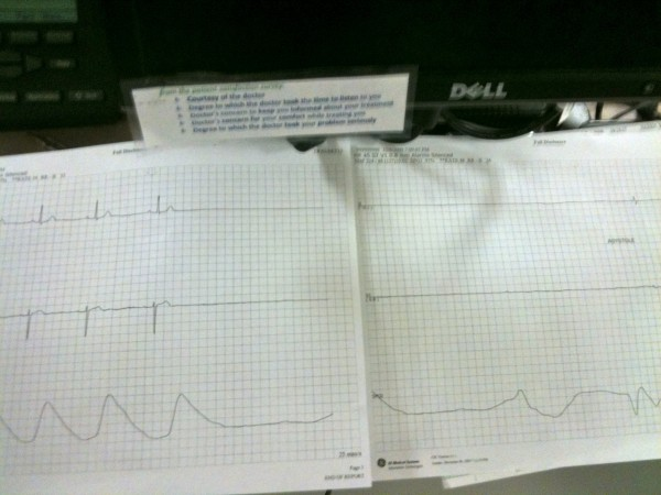Sinus arrest without an escape rhythm...